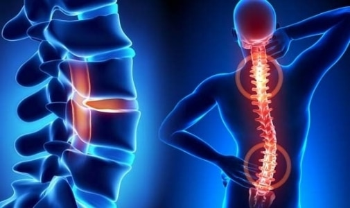 How to cure disease without surgery of the spine