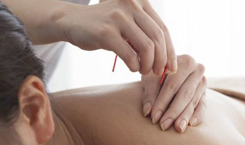 Guide to Acupuncture